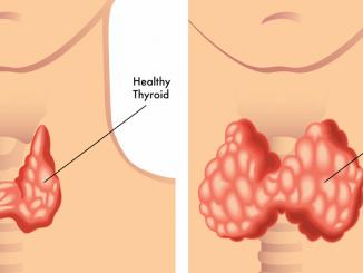 dieta pentru hipotiroidie